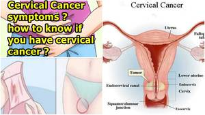 cervix pregnant wife nude - 😧 Warning Signs And Symptoms Of Cervical Cancer | How to Know If You Have  Cervical Cancer - YouTube
